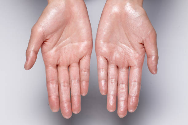 how-to-get-rid-of-sweaty-hands