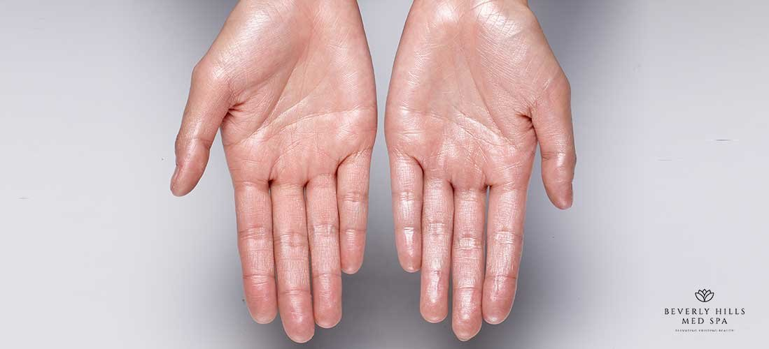 how-to-get-rid-of-sweaty-hands-Beverly-Hills-Med-Spa